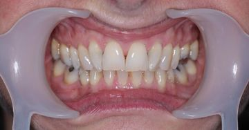 Before Invisalign clear braces