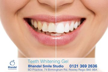 Teeth whitening gel dudley